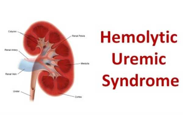 Hemolytic uremic syndrome (HUS)