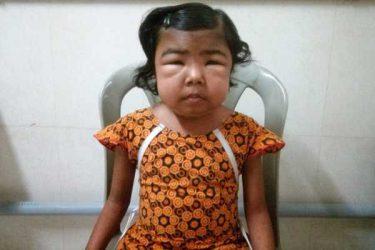 Pediatric Nephrotic syndrome